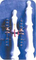 Fixateur de doigt modulaire